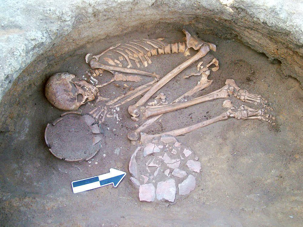 Pembersih Gigi Zaman Kuno
