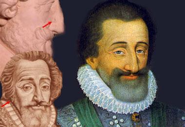 Kepala Henry IV